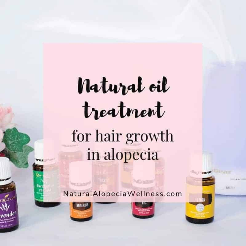 Alopecia treatment to boost hair growth using natural oils on Natural Alopecia Wellness