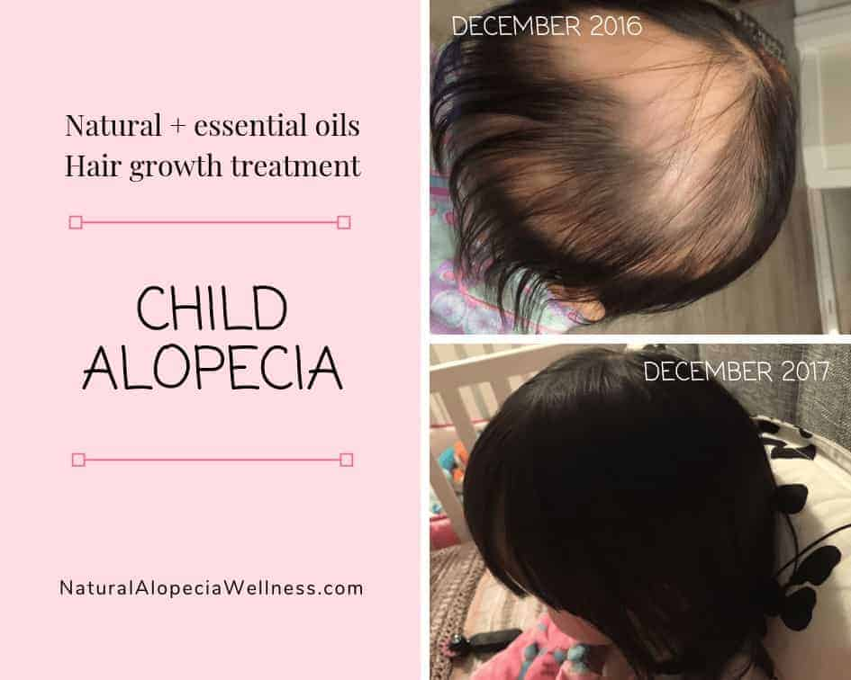 Natural and essential oils alopecia treatment on Natural Alopecia Wellness