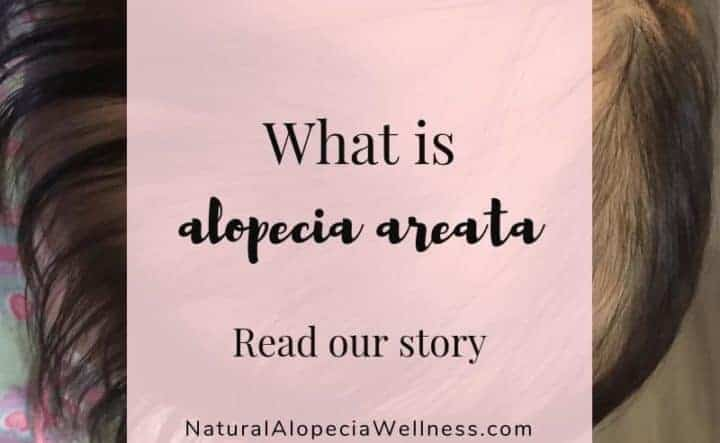 Alopecia Areata: What it is and our story of autoimmune hair loss