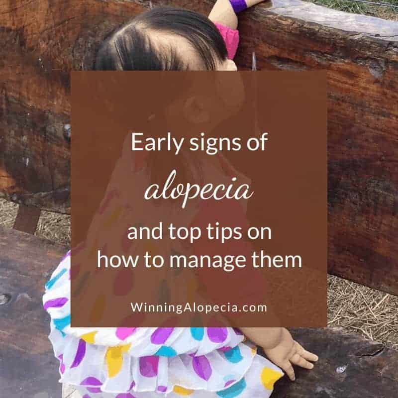 Early Alopecia symptoms and 6 tips on how to manage them