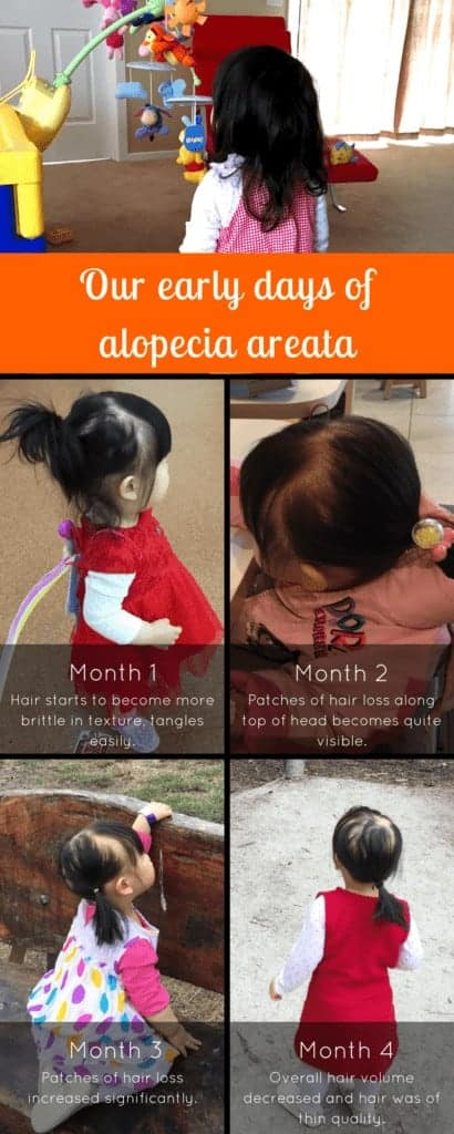 Our early days of alopecia areata in pictures on NaptimeBedtime
