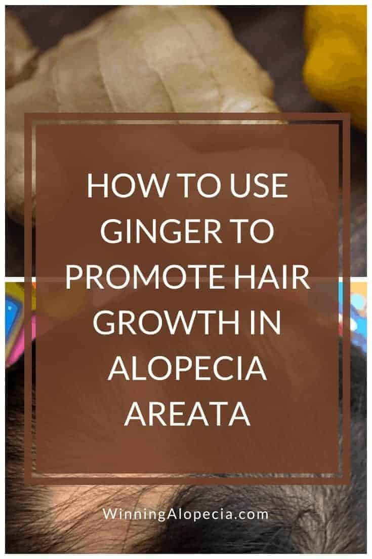 How to use ginger as part of your Alopecia treatment on Winning Alopecia Pinterest