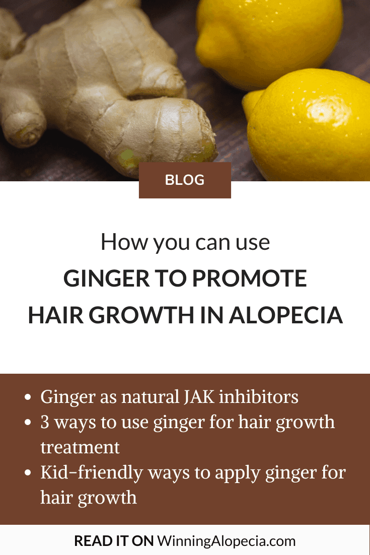 How you can use ginger as part of your Alopecia treatment on Winning Alopecia Pinterest