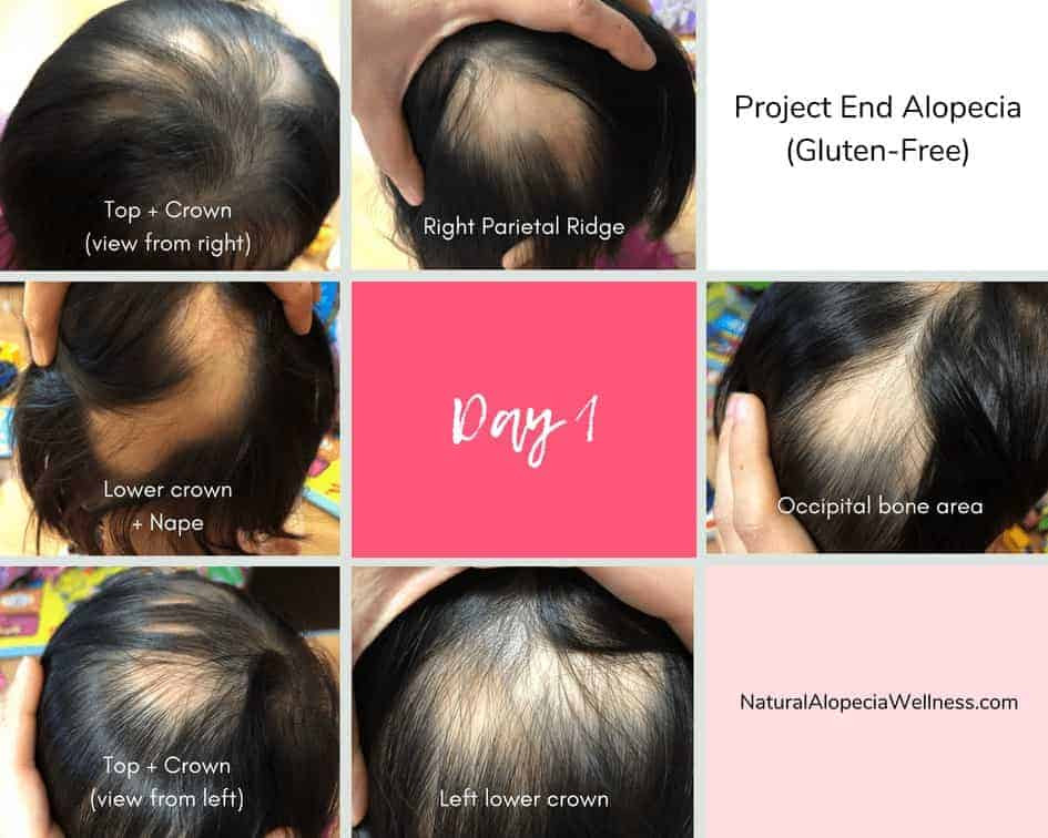 Project End Alopecia (Gluten-Free): Day 1