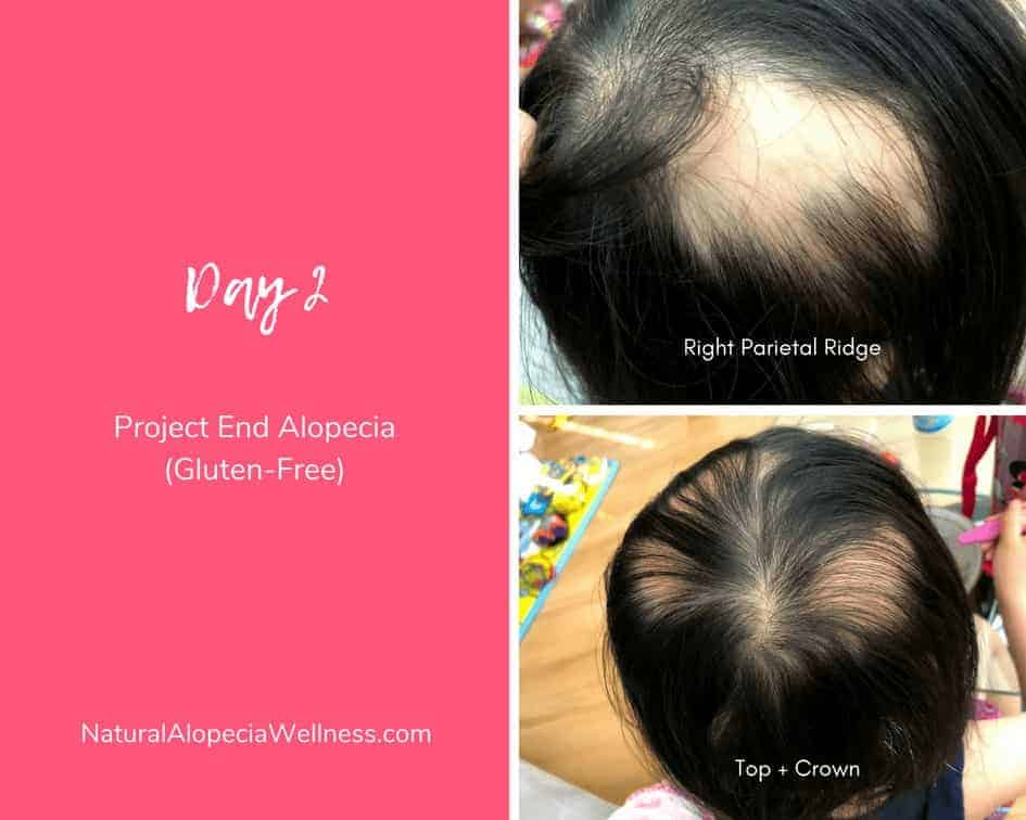 Project End Alopecia (Gluten-Free): Day 2