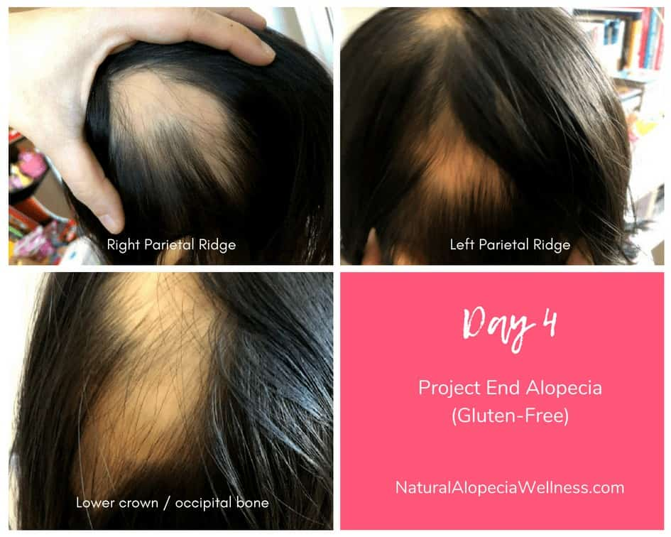 Project End Alopecia (Gluten-Free): Day 4