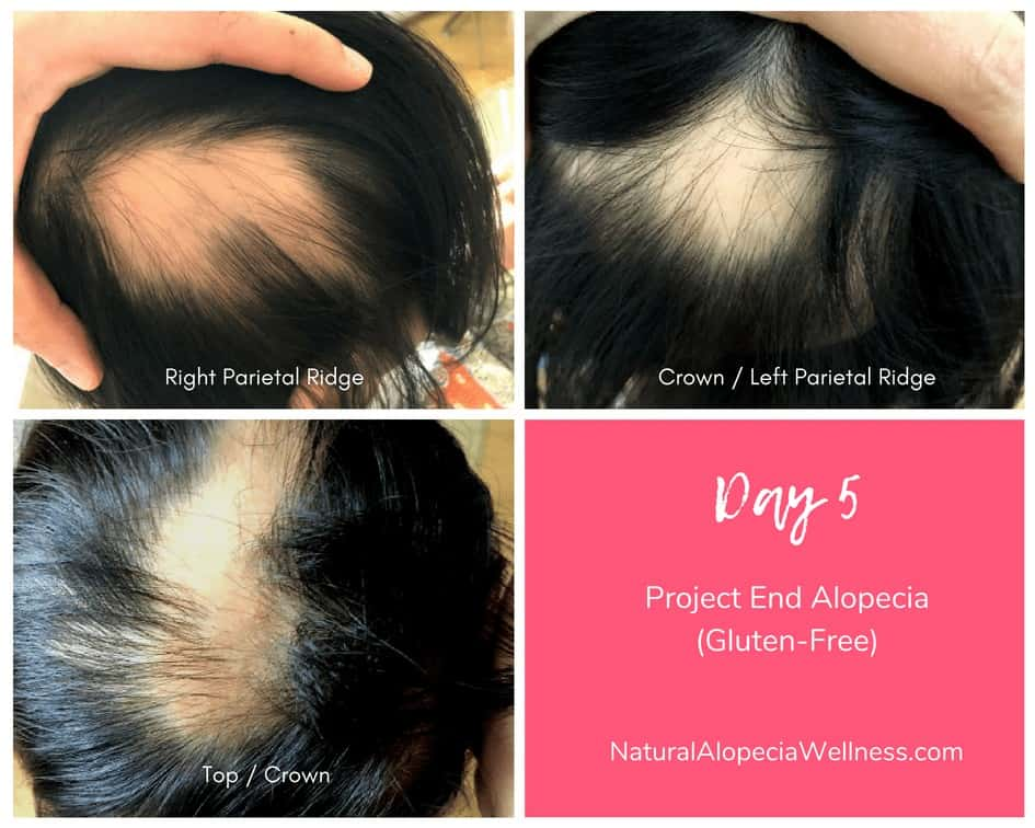 Project End Alopecia (Gluten-Free): Day 5