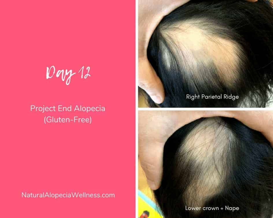 Project End Alopecia (Gluten-Free): Day 12