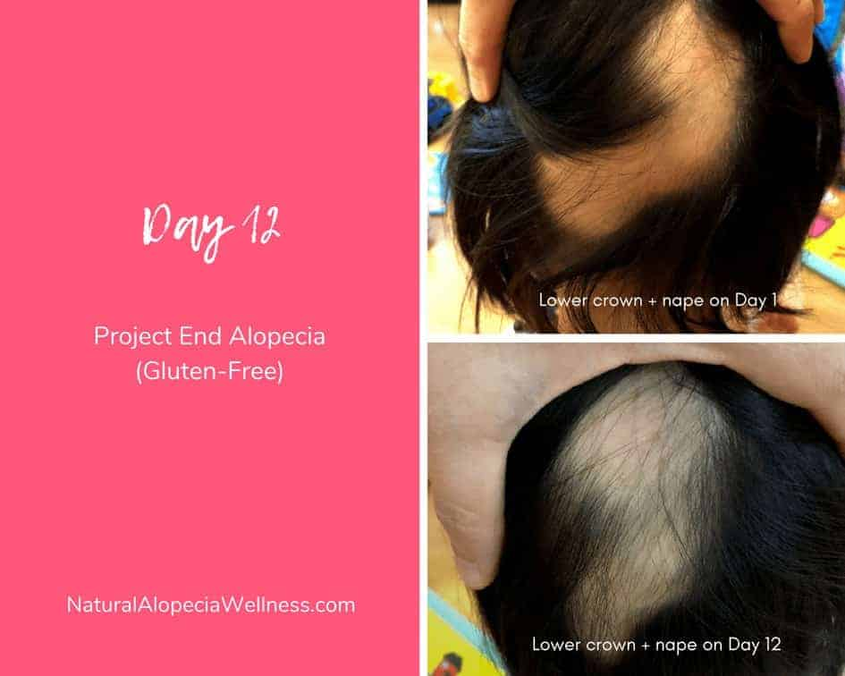 Project End Alopecia (Gluten-Free): Day 12B