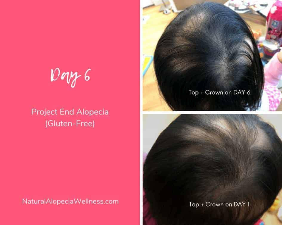 Project End Alopecia (Gluten-Free): Day 6C