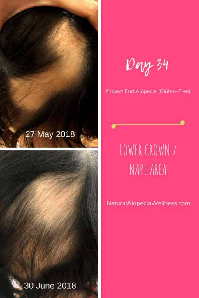 Project End Alopecia (Gluten-Free): Day 34A