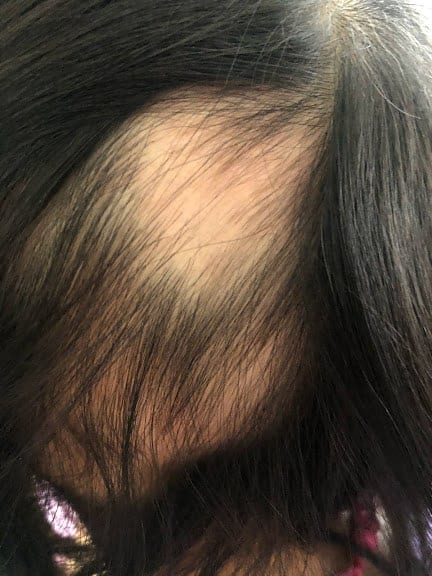 Project End Alopecia (Gluten-Free): Day 89F