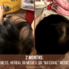 Why not homeopathy or natural medicine for Alopecia treatment on Winning Alopecia