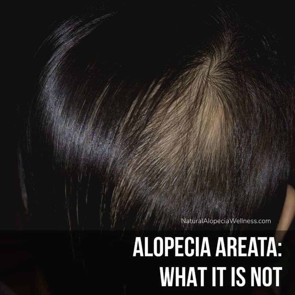 Alopecia Areata: What it is Not on Winning Alopecia