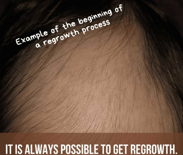 Is it still possible to get regrowth in Alopecia Areata?