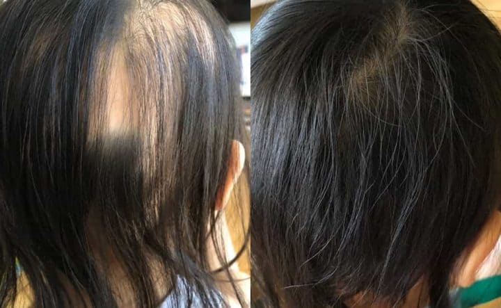 How does hair regrowth look like in Alopecia Areata?