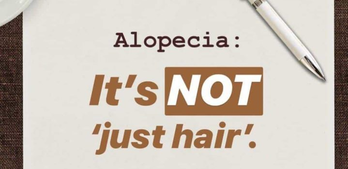 Alopecia: It's Not 'Just' Hair