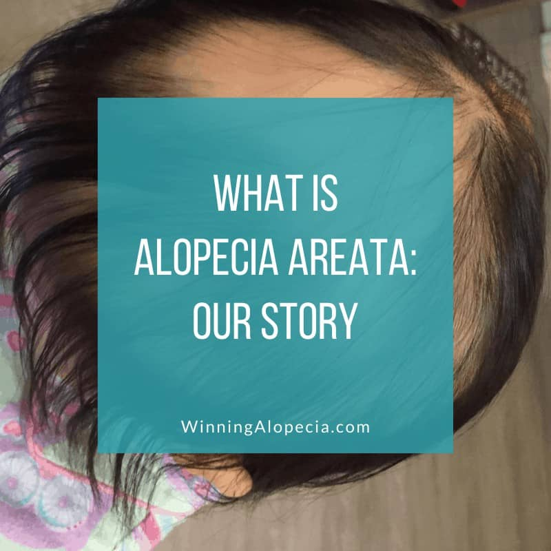 What is Alopecia Areata on Winning Alopecia
