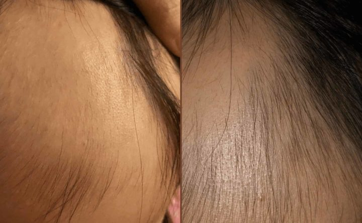 What is the Alopecia Recovery Program?