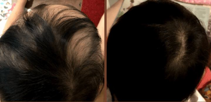 Why not homeopathy or natural medicine for Alopecia